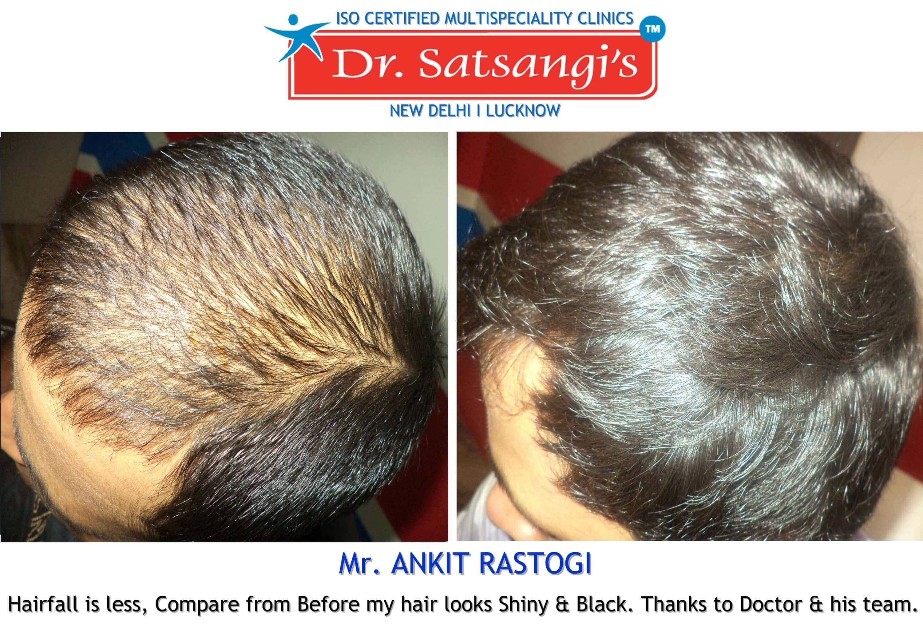 natural hair loss treatment Lucknow